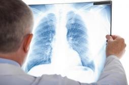 Poumons : des usines à produire des cellules sanguines