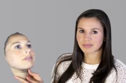 Chirurgie esthétique : imprimer son visage avant de se lancer