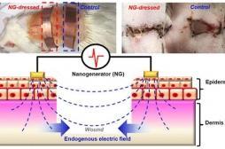 Des pansements électriques pour une cicatrisation cinq fois plus rapide