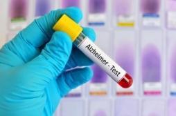 Alzheimer : un nouveau test sanguin pour le diagnostic précoce