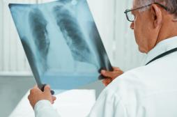Tuberculose en Bretagne : comment s'organise le dépistage