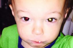 Rétinoblastome : un petit Américain sauvé grâce à une photo