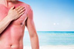 Crèmes solaires : comment déchiffrer les étiquettes