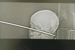 Un petit garçon survit miraculeusement après s'être empalé le crâne sur une broche à viande