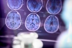 Alzheimer : la régulation du cuivre, une piste pour bloquer les pertes de mémoire