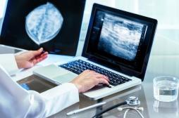 Cancer du sein : 5 millions de participantes au dépistage organisé