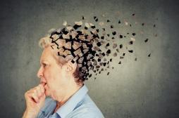 Des chercheurs découvrent une nouvelle forme de démence