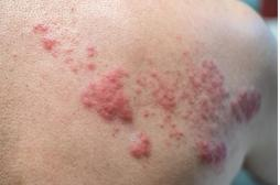 Qu'est-ce que le zona, la maladie de peau dont souffre Benoît XVI ?