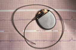 Pacemakers sans fil : premiers résultats encourageants