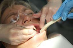 Soins dentaires : une fraise finit dans...