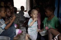 Mozambique : un jeune albinos massacré pour récupérer son cerveau
