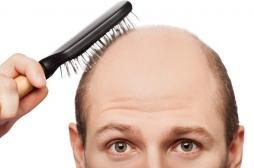 La calvitie et les cheveux gris augmentent le risque de maladie cardiovasculaire. Merci maman
