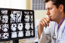 Cerveau : un cocktail vitaminé pour retarder le vieillissement