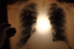 Tuberculose : trois cas confirmés dans un lycée d'Anglet