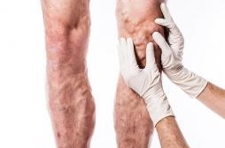 Les varices multiplient par 5 le risque de thrombose veineuse  et doublent le risque d'embolie