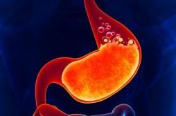 Plus de cancers de l'estomac avecles traitements anti-acides