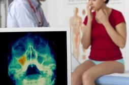 Sinusite : l'antibiotique n'est pas automatique