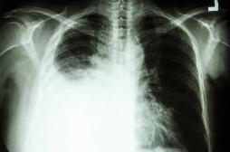 Cancer du poumon : une non-fumeuse alerte sur les risques