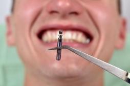 L'ANSM retire du marché des implants dentaires