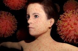 Rougeole : 77 cas à Bordeaux et une épidémie qui s'étend
