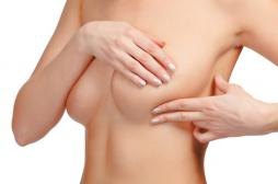 Cancer du sein : éviter les chimiothérapies inutiles avec un test ADN