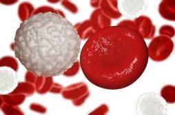 La moitié des leucémies myéloïdes chroniques en rémission prolongée sans aucun traitement