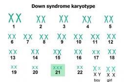 Trisomie 21, une overdose de protéines perturbe le fonctionnement des cellules