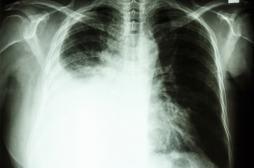 Cancer du poumon : un GPS rend le diagnostic plus précis
