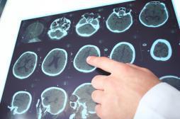 Alzheimer : le premier essai de phase 3 livre ses résultats