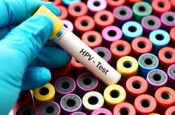 Cancer du col de l'utérus : le test HPV recommandé aux femmes de plus de 30 ans
