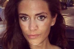 Vitiligo : une ancienne top model sort du silence