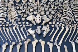 Ostéoporose : l'épidémie silencieuse qui tue plus de 5000 femmes par an