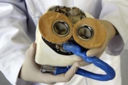 Carmat : le troisième patient...