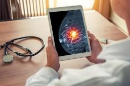 Cancer du sein : l'IA pour améliorer le diagnostic