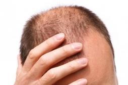Calvitie : l'ANSM met en garde contre les effets secondaires du finastéride