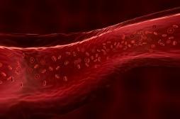 Obésité: les cellules des vaisseaux sanguins sont responsables d'une inflammation chronique