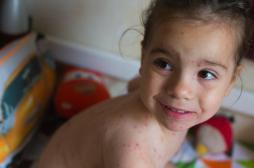 Varicelle : l'épidémie se poursuit dans 11 régions