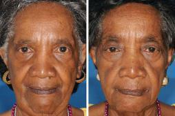 Vieillissement : les premiers signes perceptibles à 26 ans