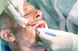 Dents : un médicament anti-Alzheimer accélère la réparation