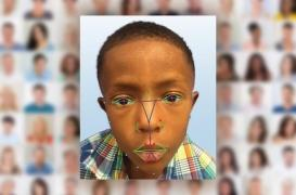 Reconnaissance faciale : utile pour les maladies rares