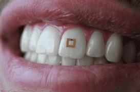 Des capteurs sur les dents pour mieux surveiller son alimentation