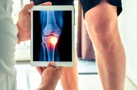 Arthrose : les injections de corticoïdes sont elles vraiment néfastes?