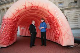 Le cancer colorectal en hausse chez les moins de 50 ans