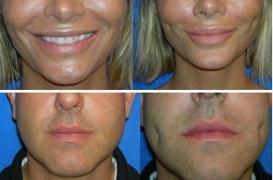 Chirurgie esthétique : la nouvelle mode des fossettes aux États-Unis