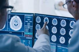 L'imagerie permet d'observer le travail des neurones