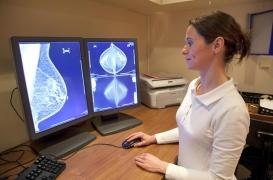 Cancer du sein et du côlon : à quel stade sont-ils généralement diagnostiqués en France ?