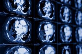 Cancer du rein métastatique : un nouveau standard de traitement