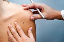 Mélanome au stade avancé : l'immunothérapie en premier améliore la chirurgie