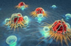 Cancer : des chercheurs découvrent 11 gènes responsables de 99% des métastases
