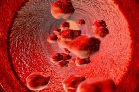 Anémie hémolytique : un nouveau traitement dans la maladie des agglutinines froides